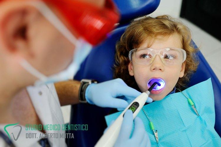 Bambino a cui viene eseguita la sigillatura dei denti, un trattamento di pedodonzia