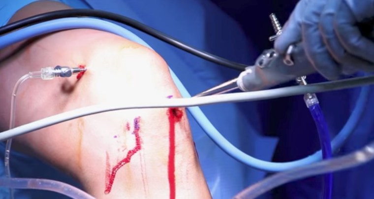 arthroscopic knee surgery looks worse than it feels