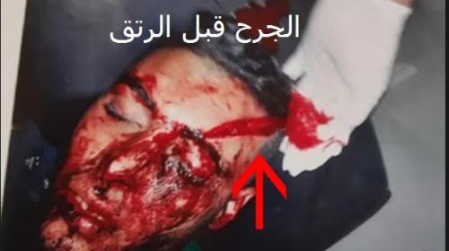 سيدي بنور:بالصور محاولة قتل يتم التداول في تحويرها الى حادثة سير و صاحبة العربة تنفي ذلك