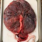 This is a placenta after birth. #placenta #afterbirth #delayedcordclamping