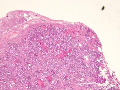 Adenocarcinoma of Cervix