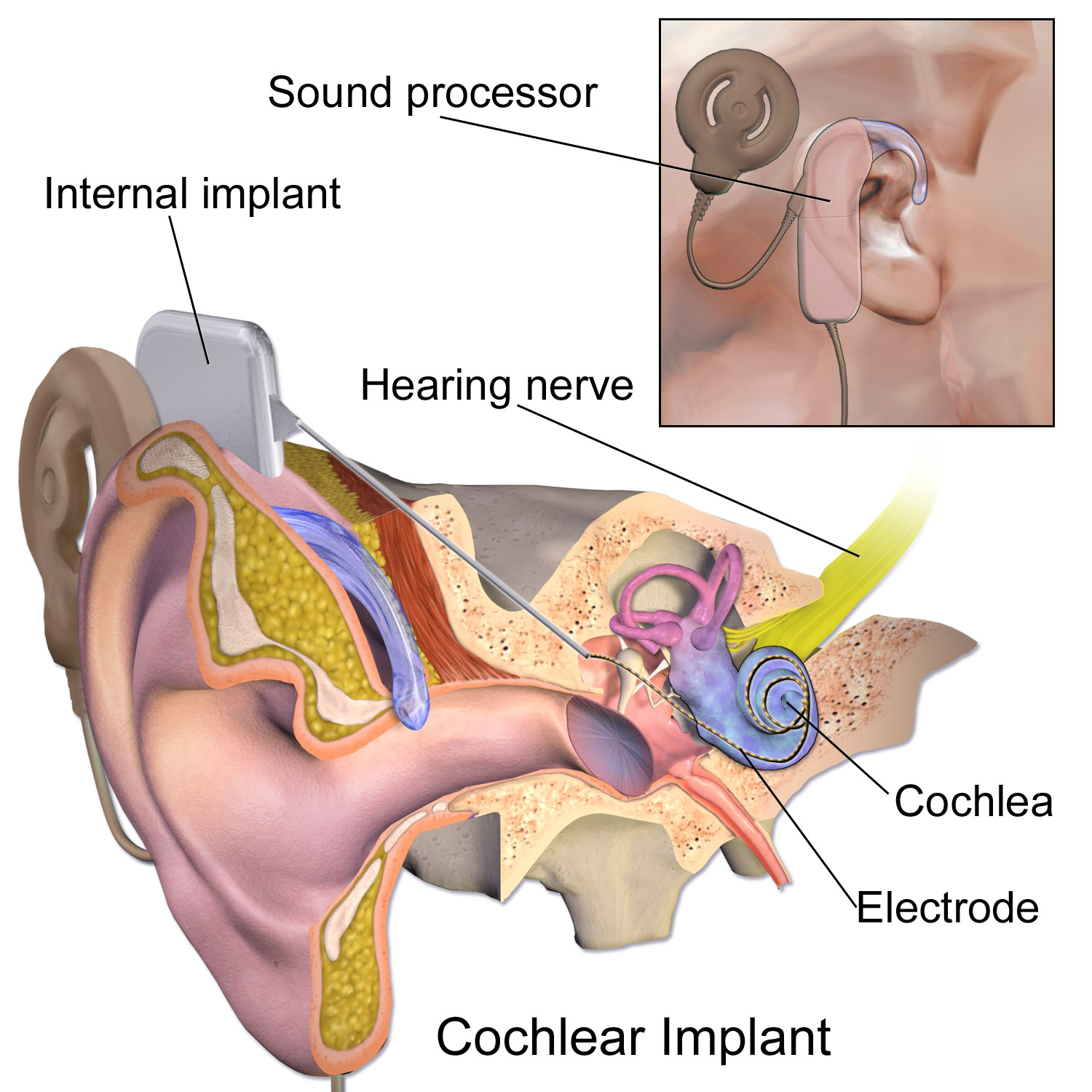 hight resolution of cochlear implant png