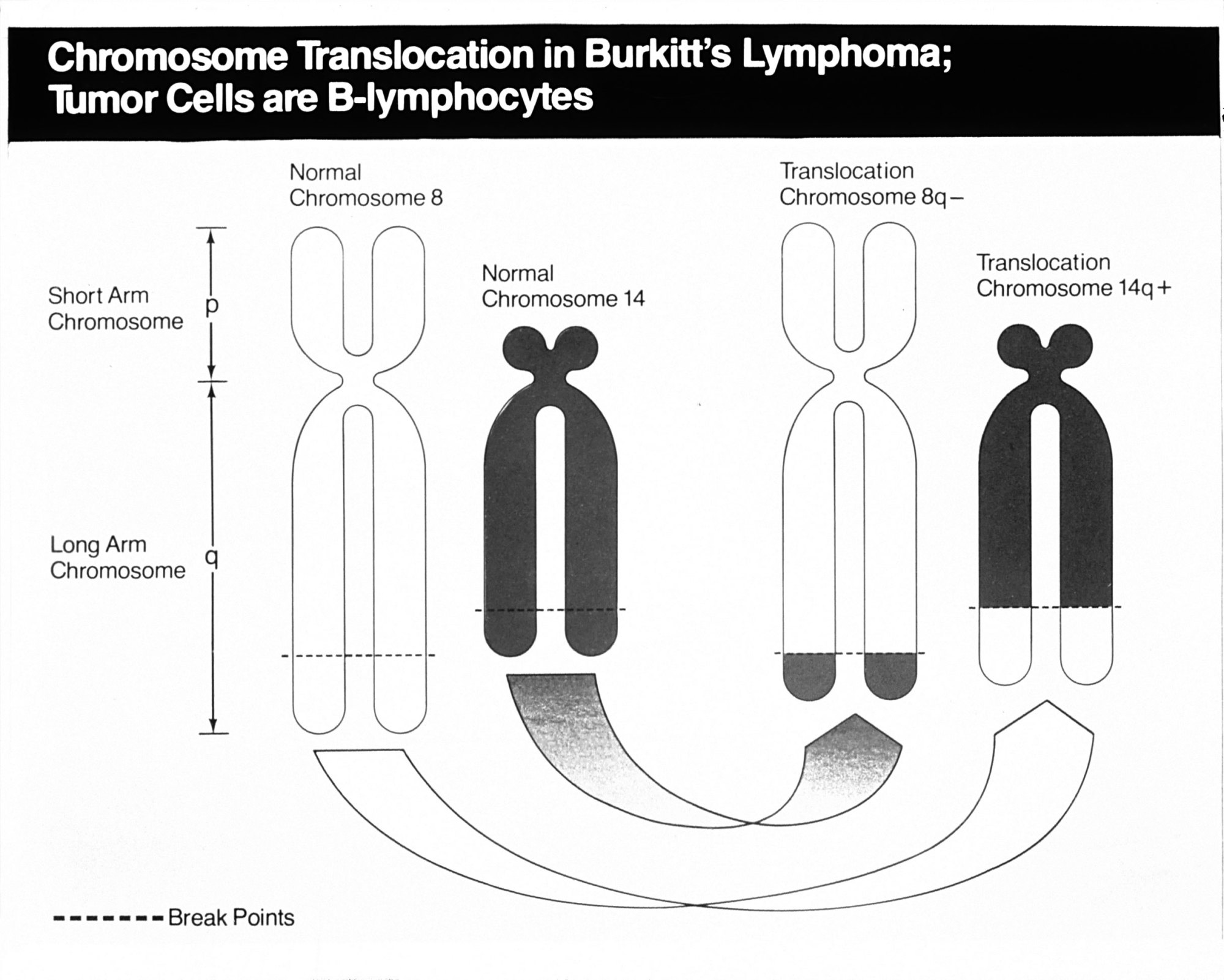 hight resolution of diagram for lymphoma staging