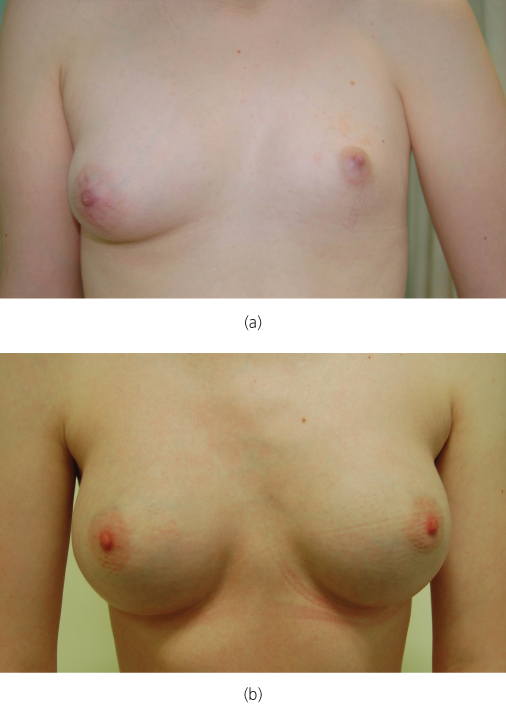 female puberty and breast development jpg 422x640