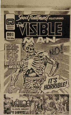 "When Dez Skinn was putting together his Quality line of 2000AD reprints, he put together several dummy covers. Here's the cover to the proposed Shock Treatment Issue One Featuring the Visible Man, one of the titles that didn't make the final line up. ""It's amazing to see the process in constructing a cover made from stats,"" David notes. ""The ink splash in the background, the strips cut out, titles and lettering pasted on, it really is an incredible piece (in my opinion, anyway!) a lost art in a way. This would be put together in photoshop now. While not original art, it certainly is a very original piece in the long history of 2000AD."""