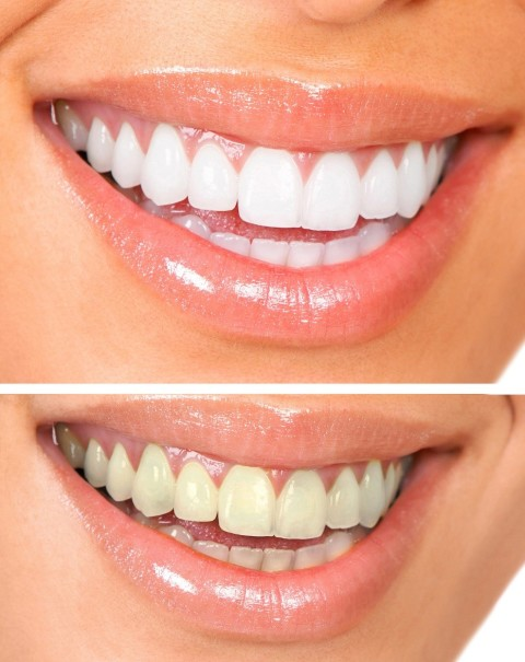 Visit Your Dentist: Amazing Benefits of Professional Teeth Whitening