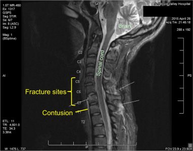 My MRI on the day of the accident