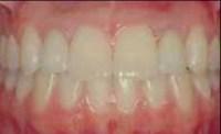 Implants31