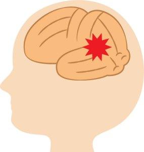 頭痛、後頭部、緊張型頭痛