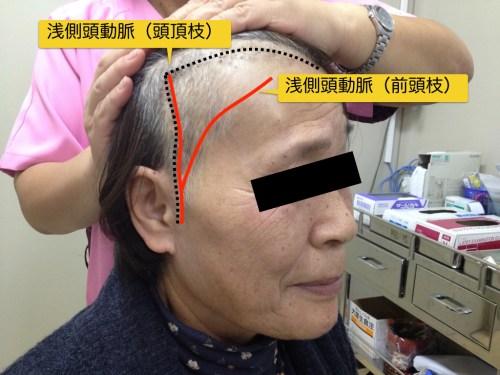 脳梗塞、バイパス手術