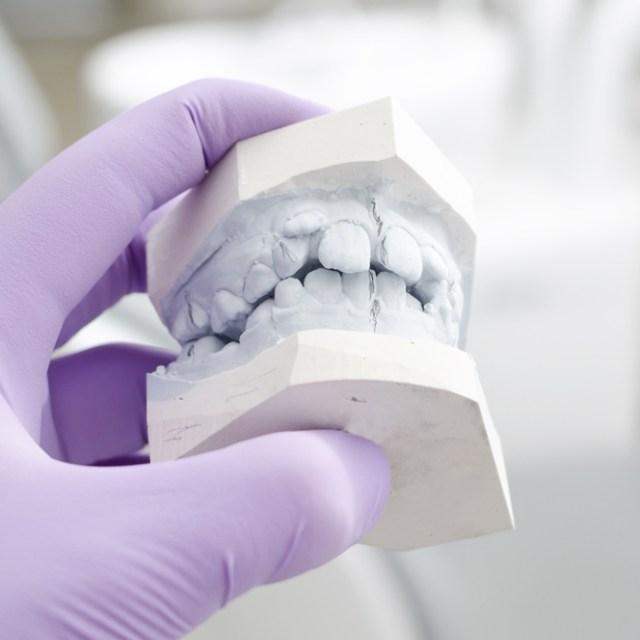 Orthodontie94-Bilan-orthodontique