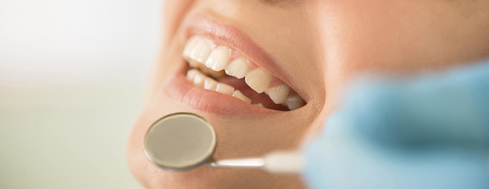 Orthodontie 94 Choisy le Roi: Bannière bouche souriante avec dents blancs