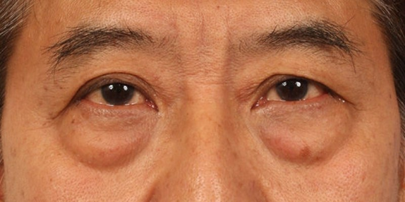 大家常說『眼袋』是什麼呢?