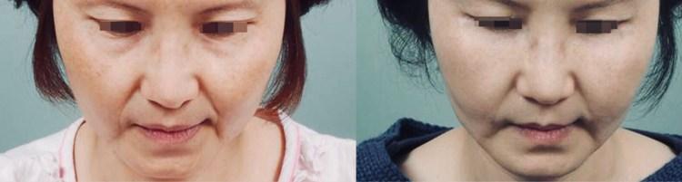 用自體脂肪移植豐頰,打造心型臉!