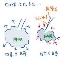 COPDの肺胞…
