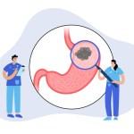 ピロリ菌除菌後にできる胃癌の特徴と対策