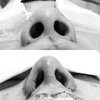 鼻はバランスが全て。鼻尖形成3D法(closed)+鼻翼縮小flap法の術後すぐの変化です。