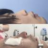 鼻中隔延長。豚鼻の方の印象解説、上向き鼻修正のビフォーアフター