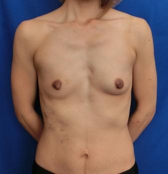 乳房が小さい方の脂肪注入豊胸のビフォーアフター