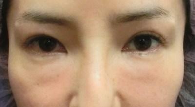 目の下のクマ、たるみ治療『結膜側脂肪除去+精密脂肪注入』ビフォーアフター