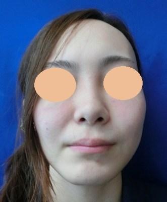 鼻翼縮小(小鼻縮小)の症例