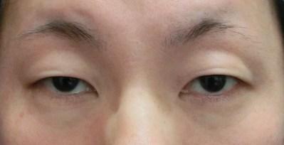 30代のかたの眼瞼下垂症