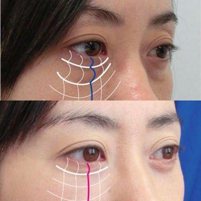 目の下のクマ治療の原因・治療法を徹底解説