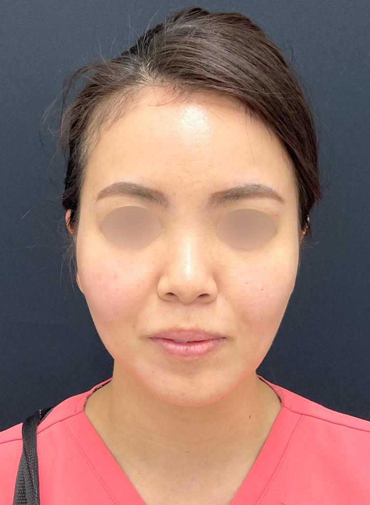 顔の脂肪吸引術後