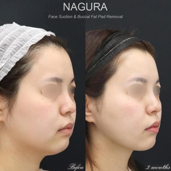 #バッカルファット #脂肪吸引 #小顔 #目の下のクマ #二重 #整形 美容外科医 名倉俊輔インスタグラムから。詳しい解説はブログからどうぞ→
