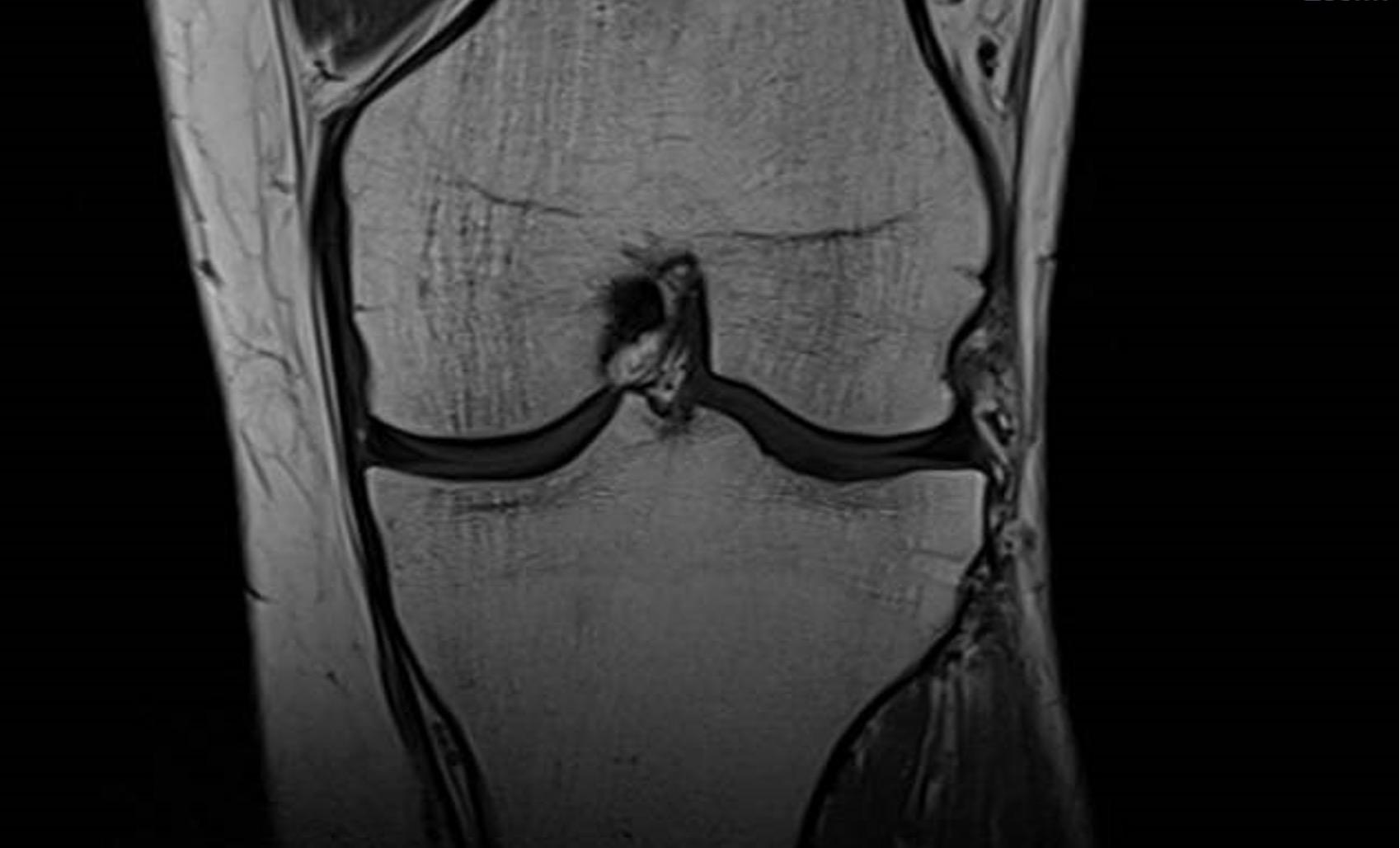 ברך MRI