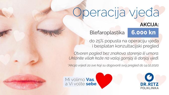 Akcija blefaroplastika- 6000 kuna za operaciju gornjih ili donjih očnih vjeđa.