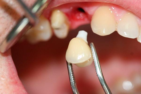 Аллергическая реакция на зубные импланты: симптомы и что делать. Аллергия на зубные импланты