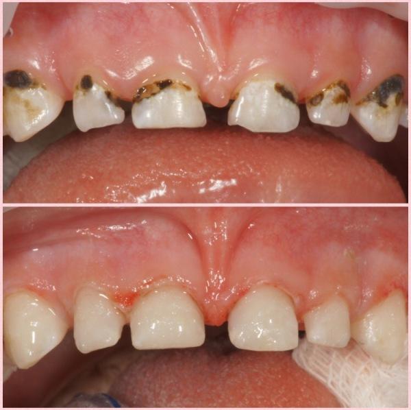 Остановим кариес о процедуре серебрения и альтернативных методах укрепления молочных зубов