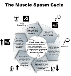 muscle spasm cycle chart [ 2326 x 2420 Pixel ]