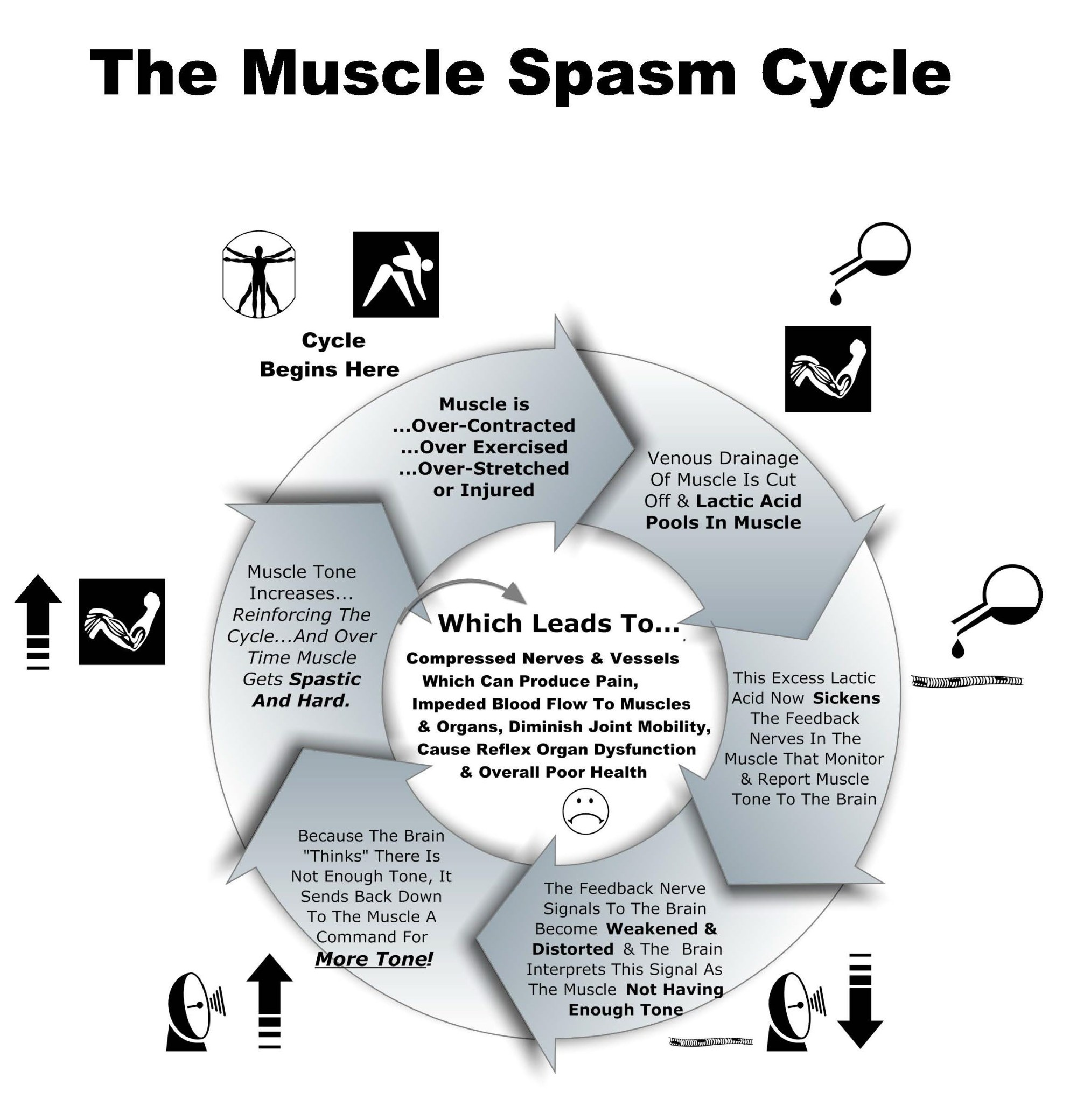 hight resolution of muscle spasm cycle chart