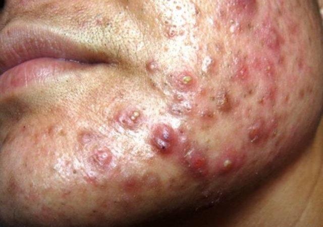為什麼我的青春痘老是治不好?哪一種的青春痘治療方是最有用?有九件你應該試試的方法讓你的青春痘獲得改善