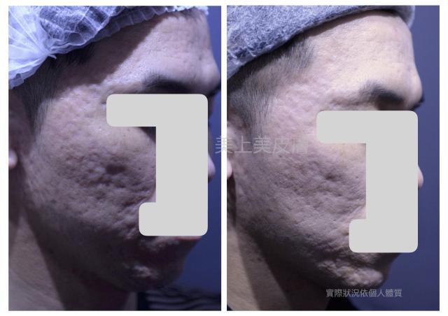 中度的痘疤只單靠飛梭雷射或單一治療是沒有用的,需要多種的痘疤治療交互運用,才可以達到良好的治療效果。