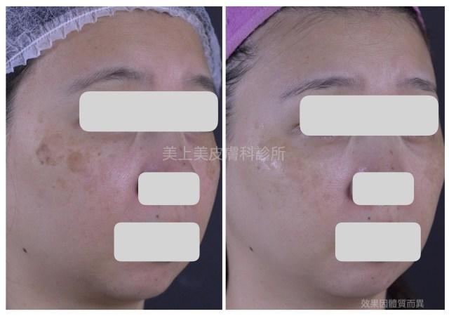 臉上的斑點要怎麼除比較好?皮秒雷射是一個好選擇!莊醫師說預防勝於治療,預防斑點最好的不二法門就是防曬
