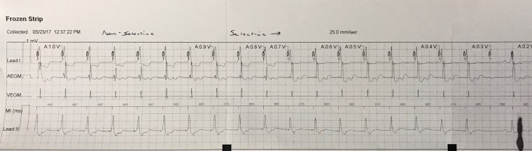 His Bundle Pacing Electrogram