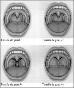 71-1-03-figura1