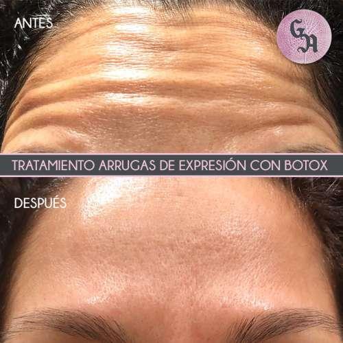 resultados arrugas con botox