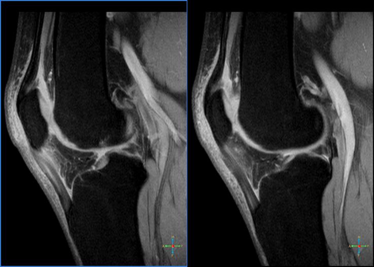 Imaging diagnostics demonstrating patellar tendinitis or jumper's knee.
