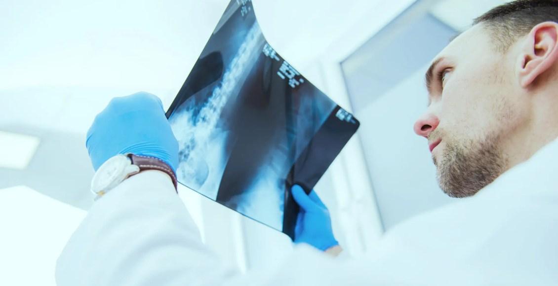 diagnosis hip arthritis and neoplasms el paso, tx.