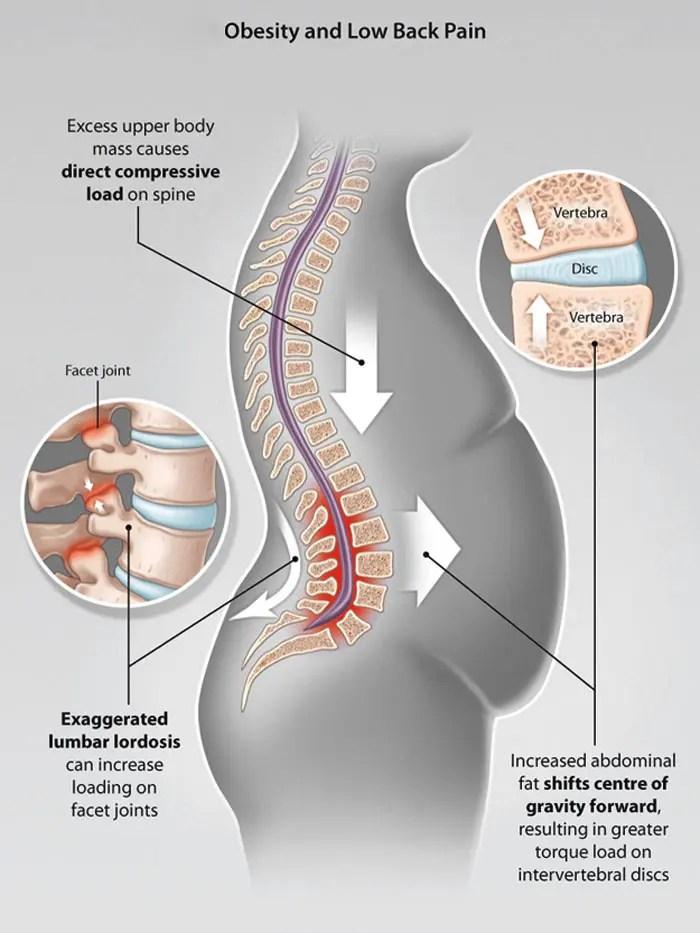 11860 Vista Del Sol, Ste. 128 La grasa del vientre puede causar dolor y lesiones de espalda