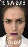 Toxina botulínica Botox entrecejo antes