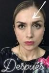Toxina botulínica Botox entrecejo después