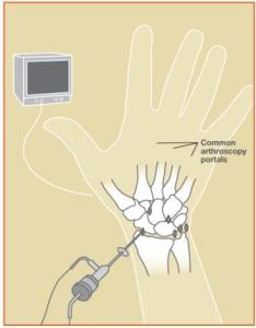 Artroscopia de pumn