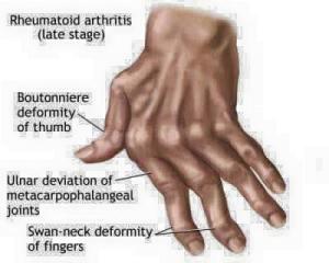 artrita reuamtoida 2