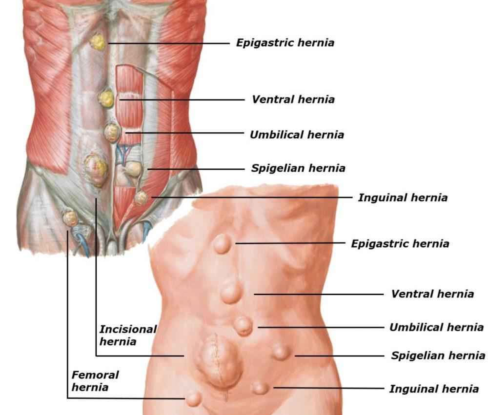 medium resolution of umbilical hernia ventral hernia epigastric hernia spigelian hernia incisional hernia
