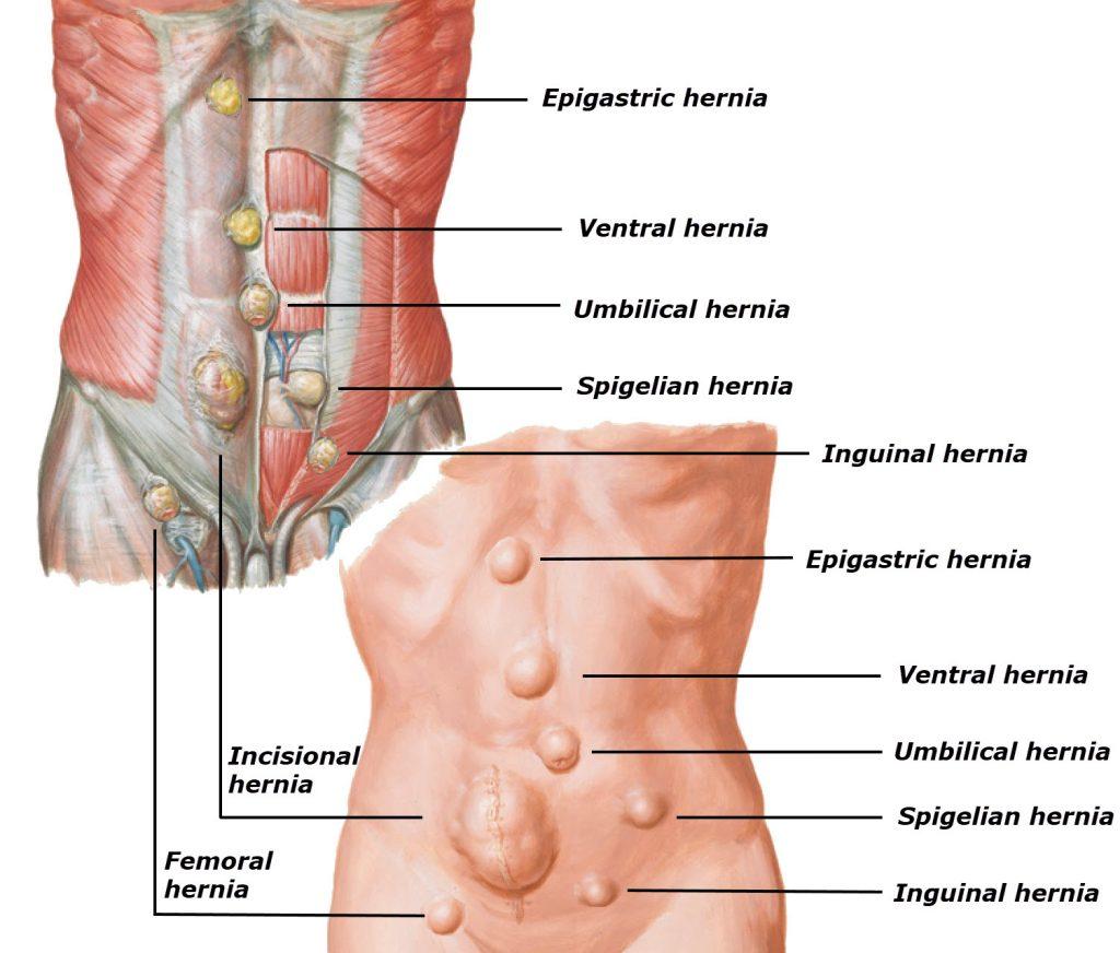 hight resolution of umbilical hernia ventral hernia epigastric hernia spigelian hernia incisional hernia